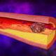 Что делать для профилактики тромбоза в сосудах и какие препараты препятствуют образованию тромбов