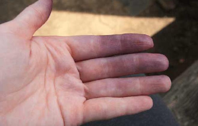 Цианоз кожных покровов