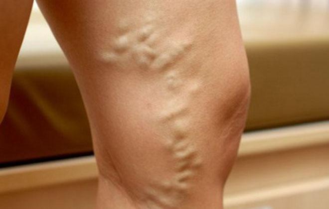 Узлы на венах ног