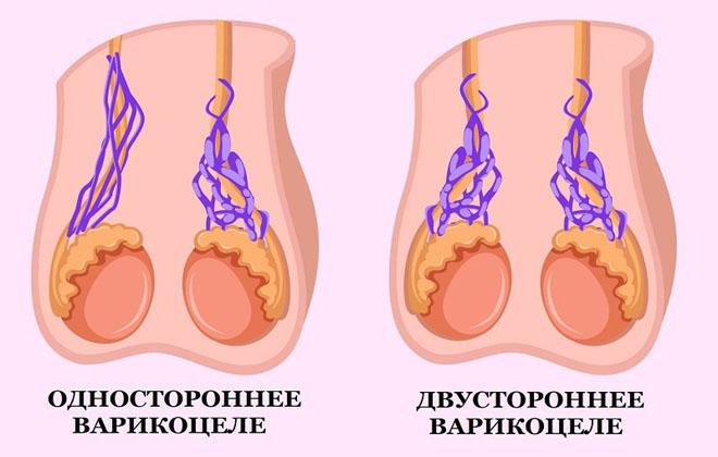 Варикоцеле с двух сторон