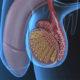 Как влияет варикоцеле на бесплодие у мужчин и можно ли забеременеть после операции