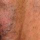 Как лечить варикоз половых органов (генитальный) и симптомы варикозного расширения вен в интимном месте