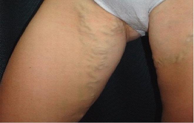 Варикозное расширение вен малого таза у женщин симптомы и лечение профилактика