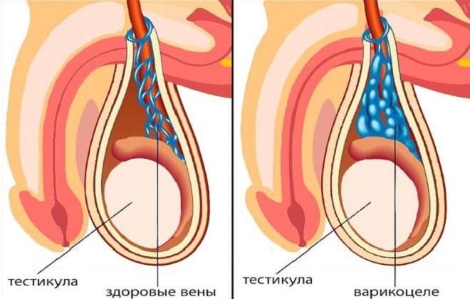 Рецидив варикоцеле после операции
