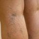 Как лечить ретикулярный варикоз вен нижних конечностей и его симптомы