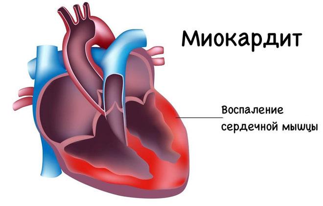Восполение сердца