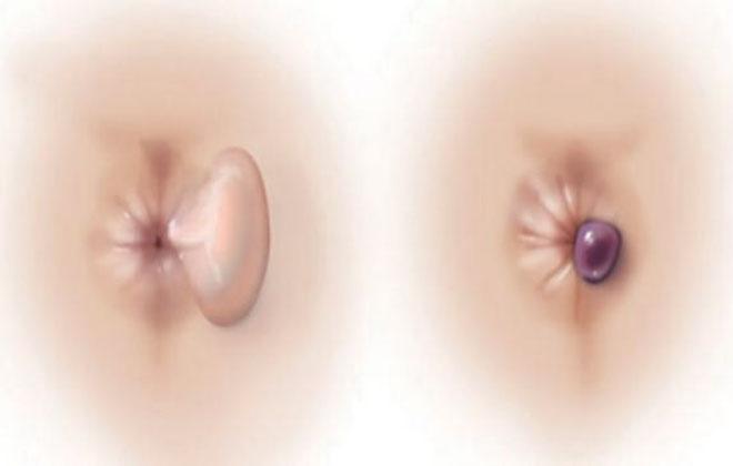 Выпадение тромбированного узла