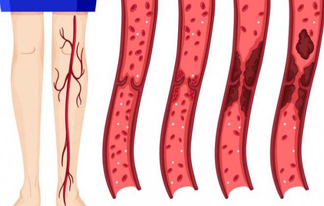 Заболевание тромбоз
