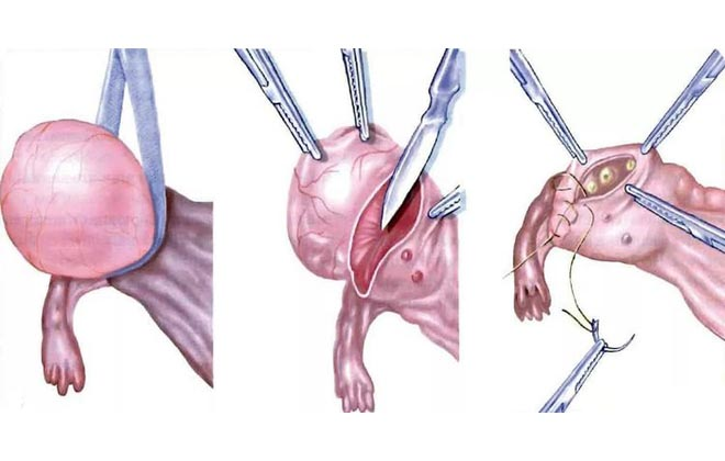 Аднексэктомия процедура