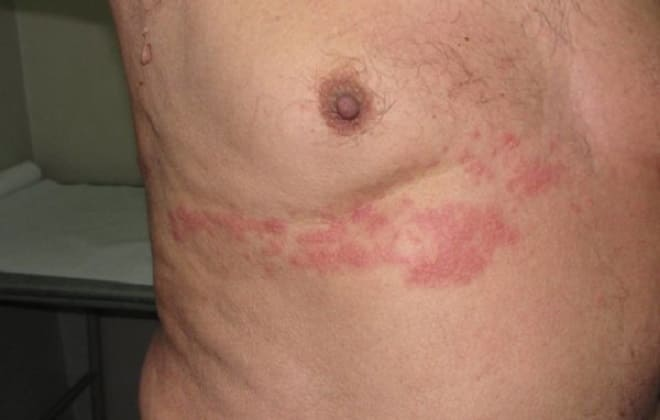Аллергическая реакция в виде сыпи