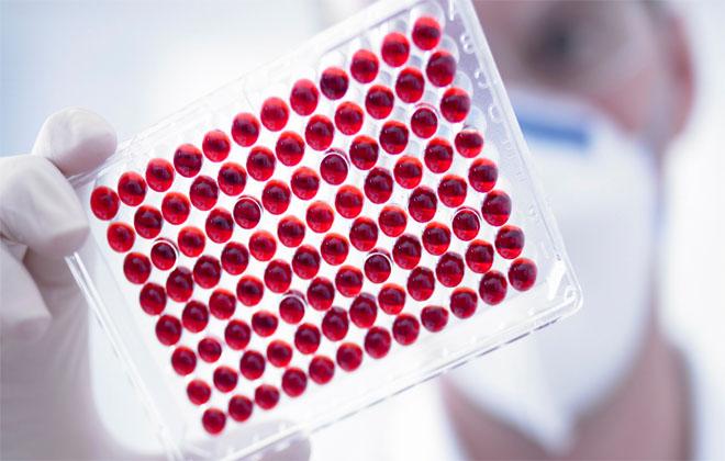 Анализы крови на лейкоциты