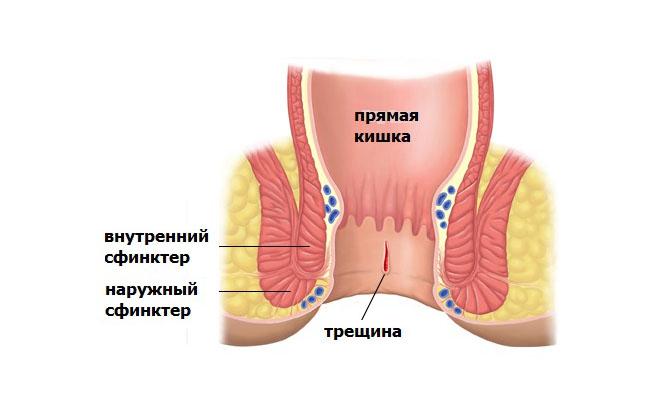 Анальные трещины