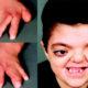 Симптомы развития анемии Фанкони