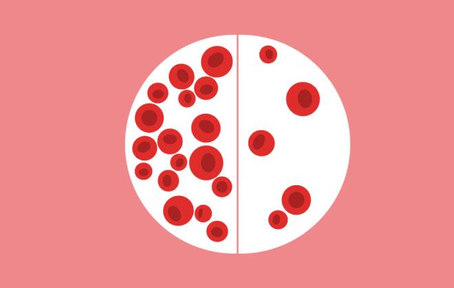 Лечение анемии народными средствами: в домашних условиях, у взрослых, как бороться