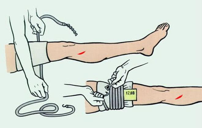 Артериальное кровотечений