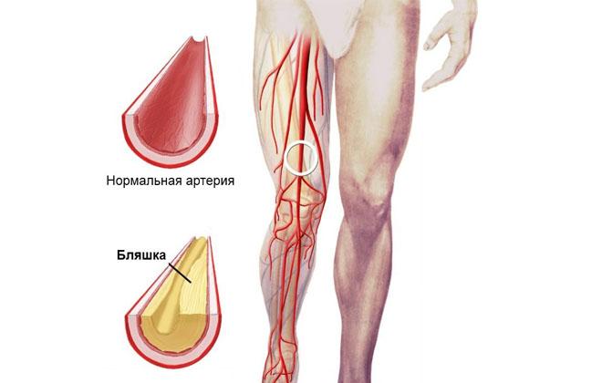 Атеросклероз ног