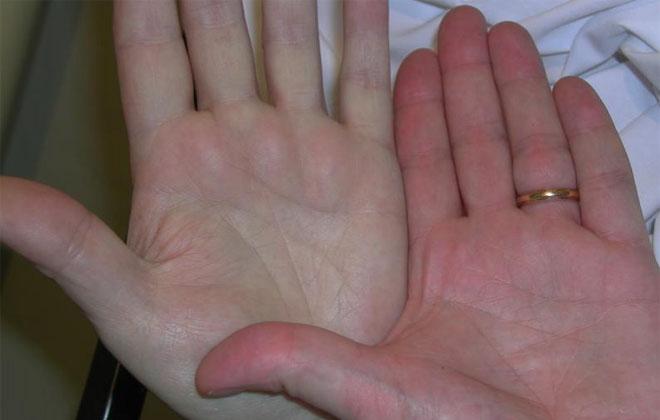 Белые руки