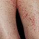 Как лечить васкулит нижних конечностей (ног) народными средствами