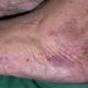 Чем лечить васкулит у взрослых и какие симптомы (признаки) болезни
