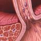 Как лечить варикозное расширение вен (варикоз) пищевода его симптомы и классификация