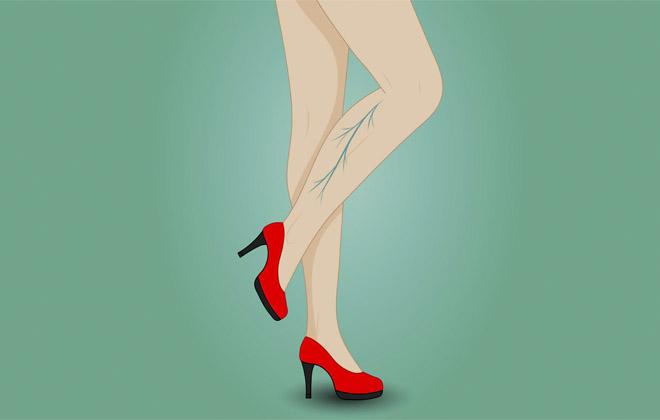 Болезнь вен на ноге у женщины
