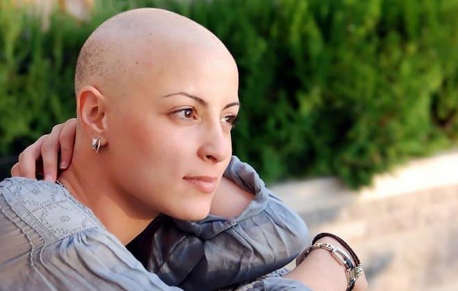 Девушка после химиотерапии