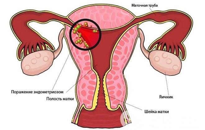 Дисфункция матки