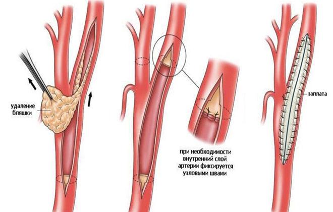 Эндартерэктомия операция