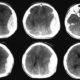 Как лечить подострую эпидуральную гематому головного мозга
