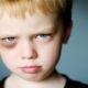 Как быстро убрать (свести) синяк под глазом от удара и чем лечить гематому нижнего века