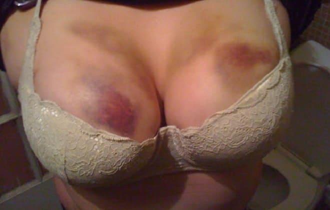 Кровоподтеки на груди