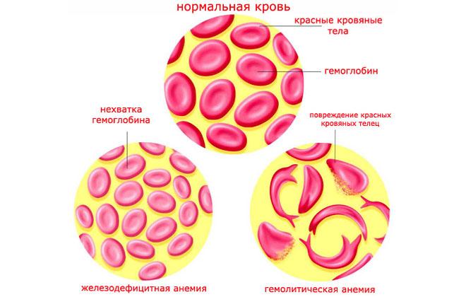 Аутоиммунная гемолитическая анемия у взрослых