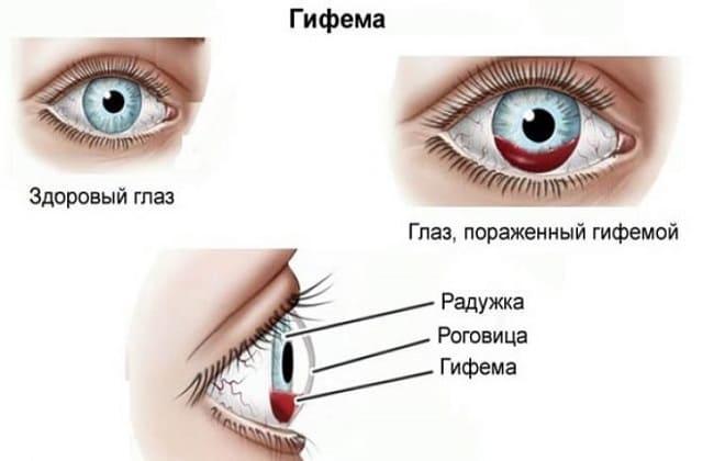 Гифема глаза человека