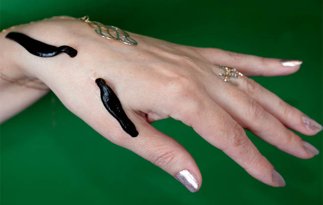 Гирудотерапия рук