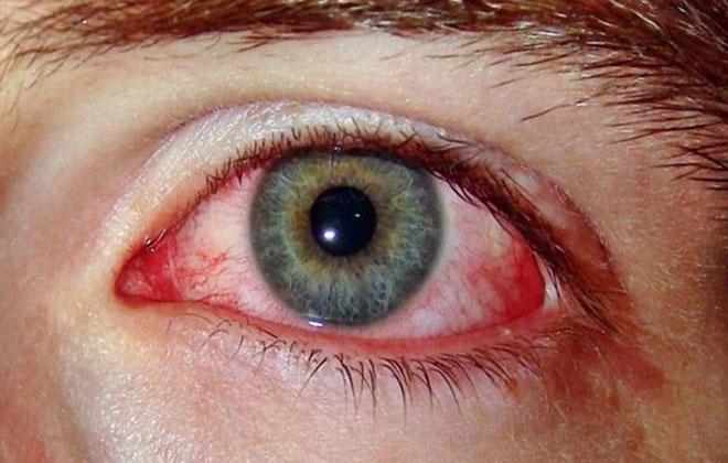 Глазная гематома