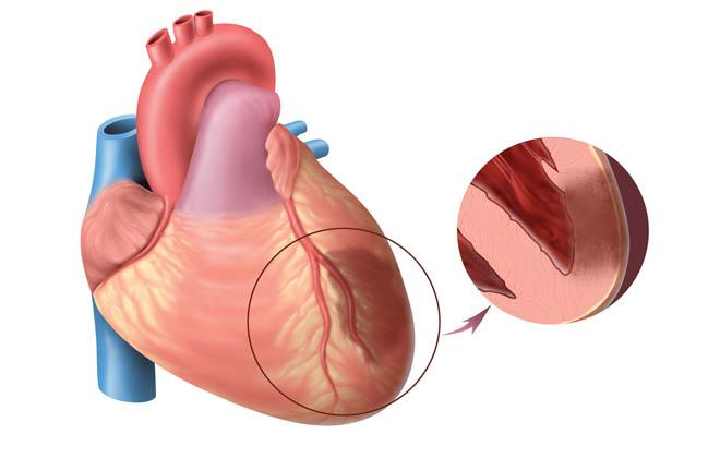 Инфаркт миокард