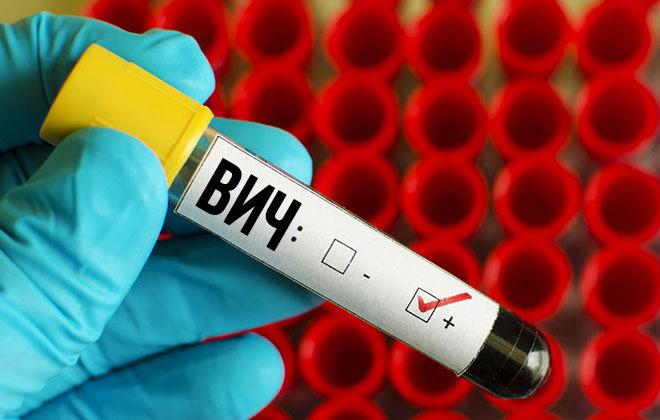 Исключить ВИЧ