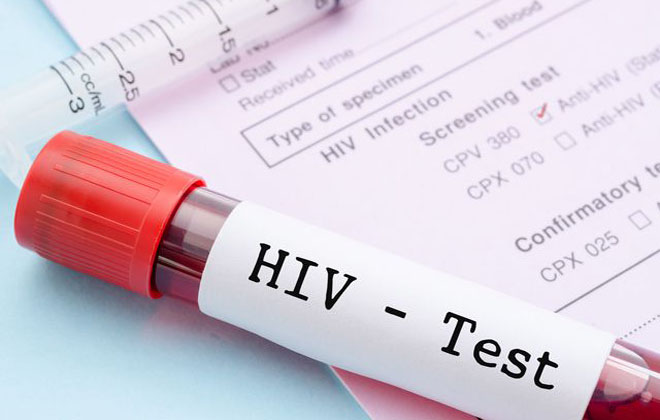 Исследование крови на ВИЧ