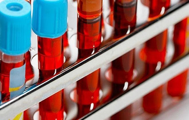 Исследование состава крови