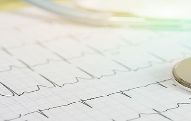 Кардиограмма работы сердечной мышцы