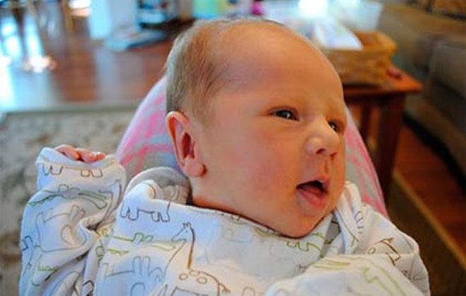 Кефалогематома у новорожденных