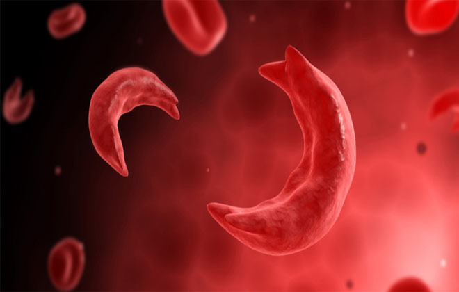 Клинические проявления анемии