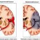 Какие симптомы кровоизлияний в головной мозг у новорожденных детей и возможные последствия