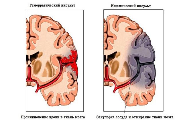 Кровь в голове у малыша