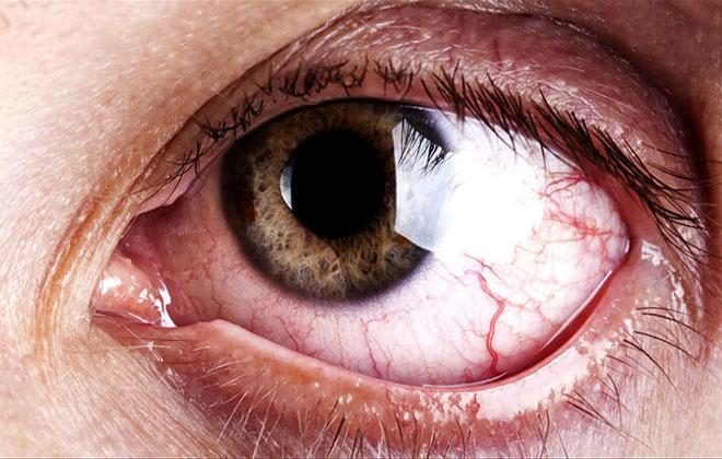 Кровоизлияние происходит в самой глазнице