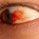 Что делать когда лопнул сосуд в глазу и какие капли капать для лечения полопавших капилляров