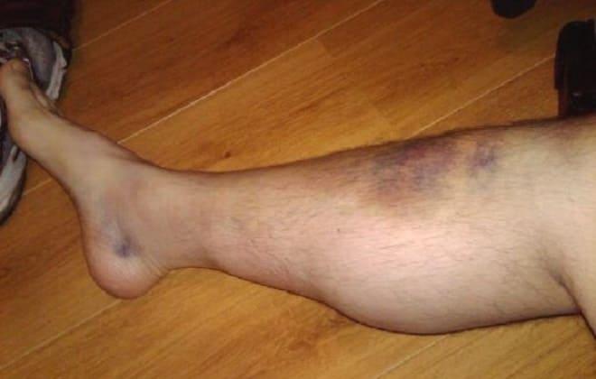 Лопнула вена на ноге - как оказать доврачебную помощь