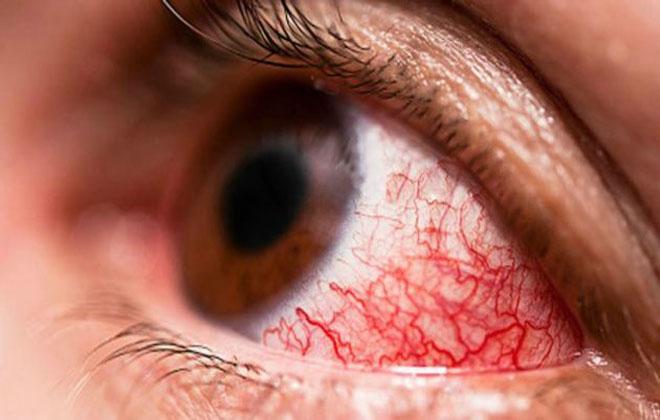 Кровоточащие глаза