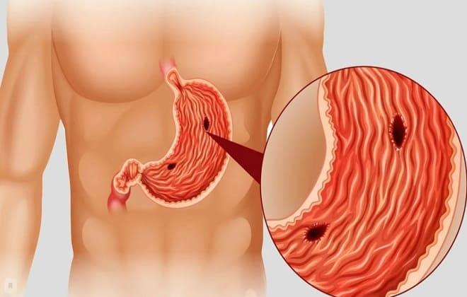 Кровоточит язва кишечника