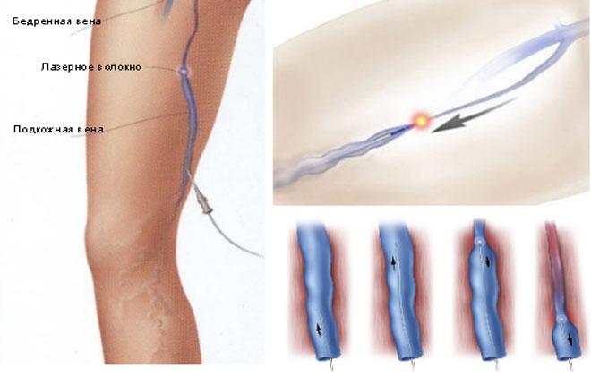 Лазерная коагуляция ног